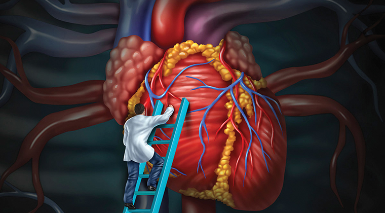 Image result for cardiovascular disease